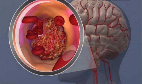 Обнаружен белок, способный защитить мозг от последствий инсульта
