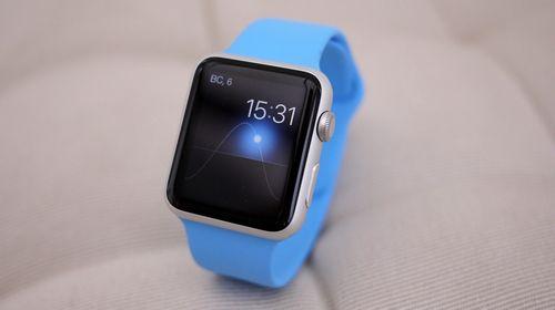 Вам еще интересны «умные часы» от apple?