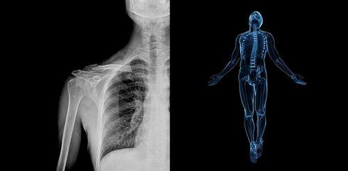 «Врачи» с искусственным разумом поставят диагнозы по рентгену
